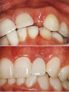 Implante Dental Incisivo Lateral